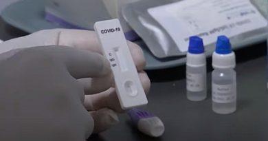 REGATUL UNIT va efectua milioane de teste pentru coronavirus cu rezultate în 90 de minute